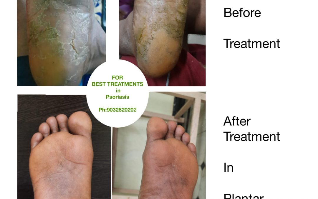 Plantar Psoriasis Before and After